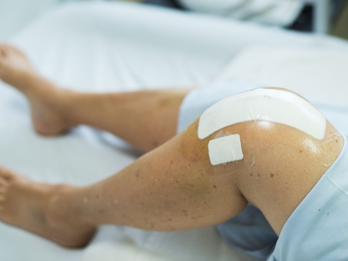 How to Avoid Costly Knee Replacement Surgery
